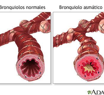 Bronquilo Asmatico