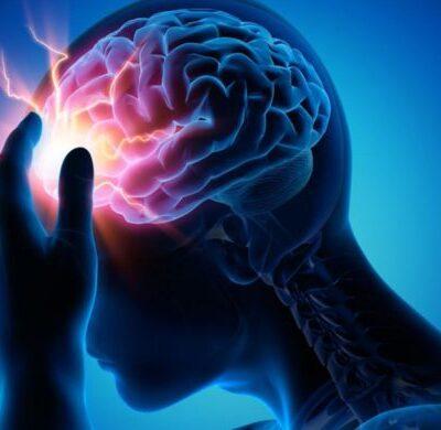 accidente-cerebro-vascular-acv