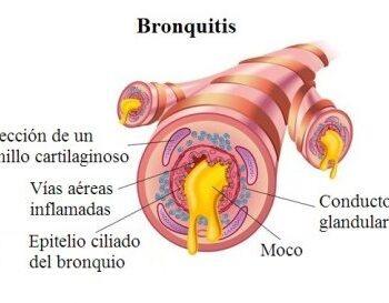 bronquitis-1-400x273