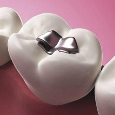 caries-dentales-empastes