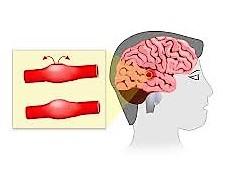 aneurisma Intracraneal