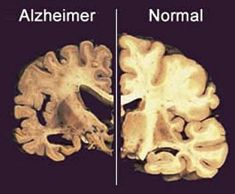 Cerebro con Alzheimer vs cerebro normal