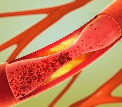 Arteria ocluida