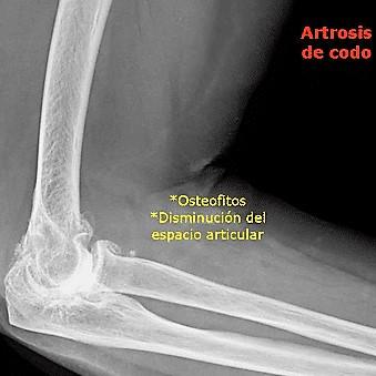 Artrosis-de-codo1
