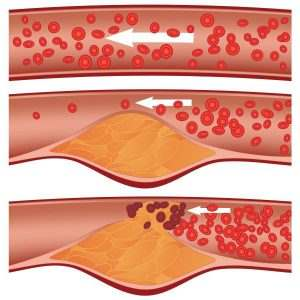 Etapas de la Arterioesclerosis