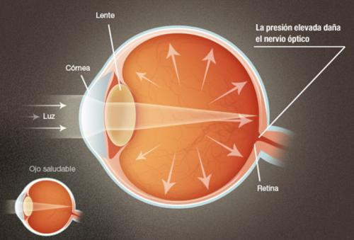 Glaucoma explicacion