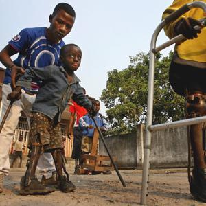 Paralisis de Polio