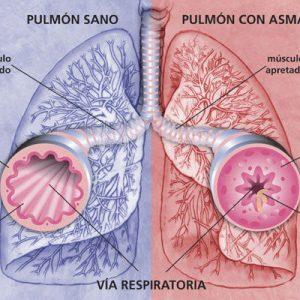 Pulmon con Asma