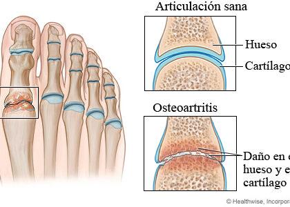 artrosis de los dedos del pie