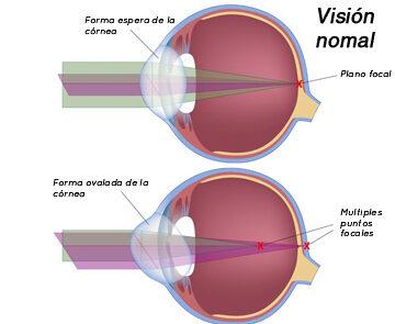 astigmatismo ejemplo