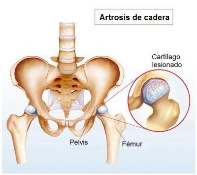 cadera con artrosis