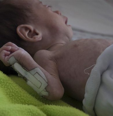 desnutricion en infantes