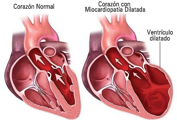 ejemplo de cardiopatia congenita