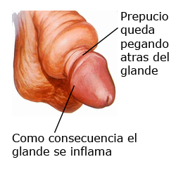 ejemplo de inflamacion del glande