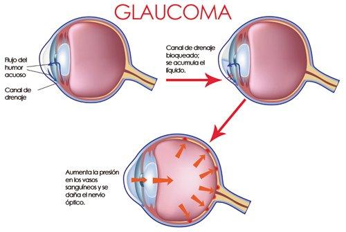 glaucoma en paciente