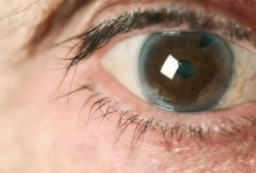 glaucoma evolucion