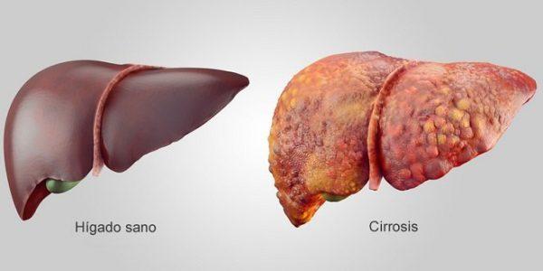 higado normal vs cirrosis