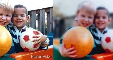 miopia vs normal