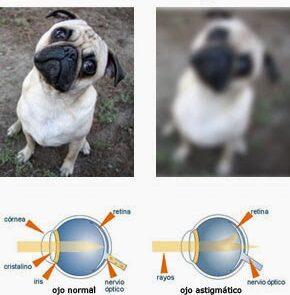 normal vs astigmatismo