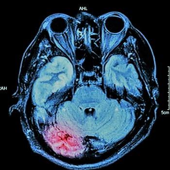 radiografia de cerebro-