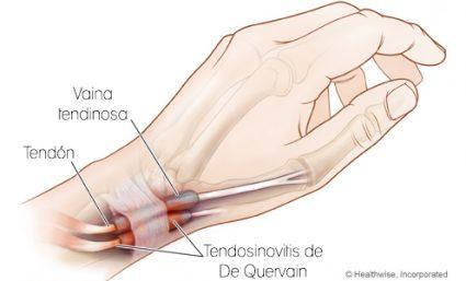 tendinitis en la mano