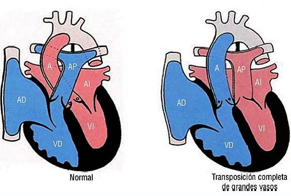 trasnposicion de los grandes vasos, ejemplo de cardiopatia