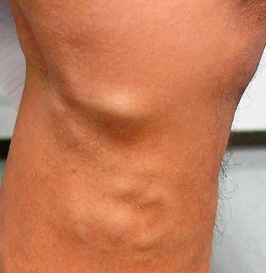 trombosis venosa en paciente